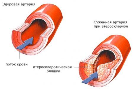 Основная причина возникновения нестабильной стенокардии — атеросклеротические бляшки в венечных артериях.