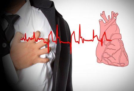 Нестабильная стенокардия и инфаркт миокарда без подъема сегмента ST - Кардиолог