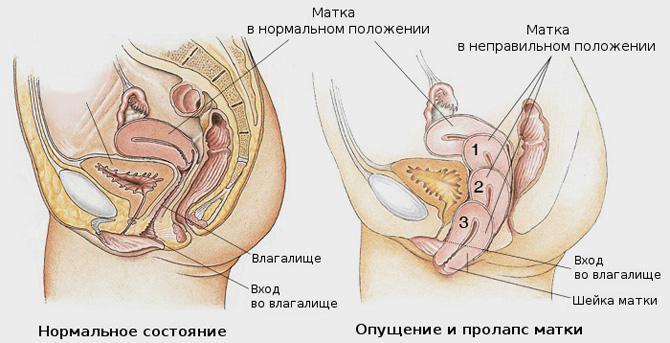 Расположение матки в нормальном положении и при опущении органов малого таза