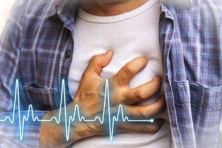 Приступ стенокардии напряжения