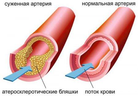 Сужение артерий - атеросклероз - основная причина возникновения стенокардии
