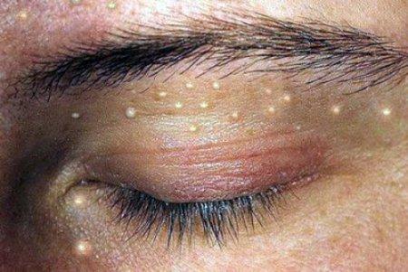 Ксантомы – липомы небольших размеров, возникают в основном на веках и в области вокруг глаз.