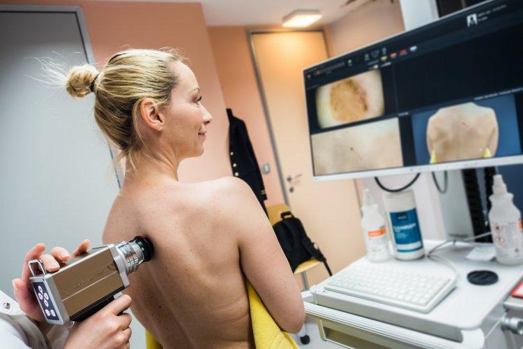 Дерматоскопия кожи