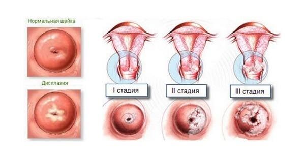 Лечение дисплазии шейки матки